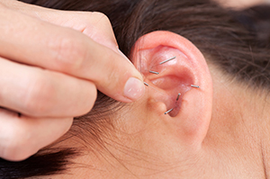 acupuncture-auricular-therapy