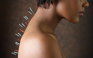 acupuncture - complex
